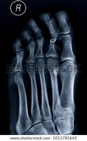 Free Photos Foot Anatomy Foot Bones Avopix