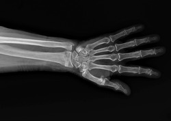 x-ray of the forearm bones with a fractured radius