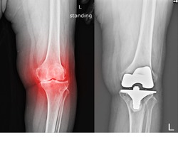 x-ray of the left knee that has osteoarthritis and bone regeneration, causing pain and swelling when walking and x-ray knee Total Knee Replacement Helps to reduce knee pain and easy walking.