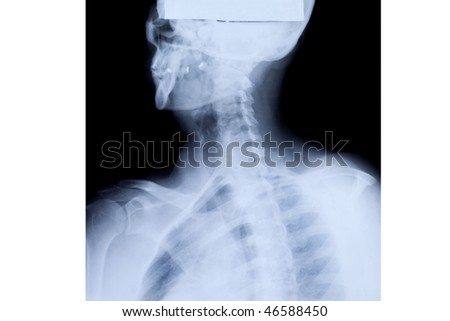 stock photo x ray of the mature woman upper body 46588450 Hillary Scott   Panty Party #1. Length: 30:03 minutes 258.9MB mp4 640x480