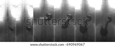 X-ray of the upper gastrointestinal series (UGI) with barium. Cancer of the cardiac part of the stomach. Negative. Marker. Zdjęcia stock ©