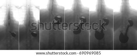 X-ray of the upper gastrointestinal series (UGI) with barium. Cancer of the cardiac part of the stomach. Negative. Zdjęcia stock ©