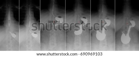 X-ray of the upper gastrointestinal series (UGI) with barium. Cancer of the cardiac part of the stomach. Marker. Zdjęcia stock ©