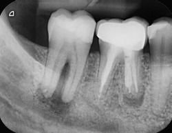 X-ray of two human tooth molars, both showing infections. One has an abscess and one has been root canal treated already and has a crown. Endodontic therapy.