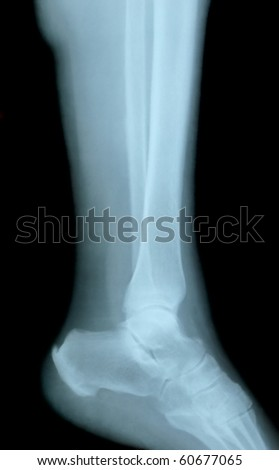 x-ray Osteoporosis foot