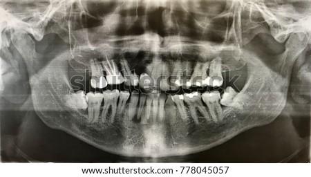 x-ray photo of human teeth with wisdom teeth #778045057