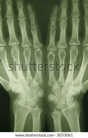 x-ray photo of person hands