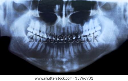 X-ray photo of teeth with braces