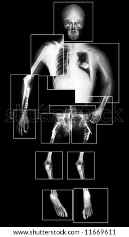 X-ray picture of human body