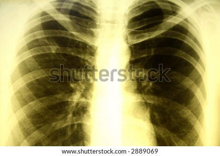 X-ray picture of human thorax