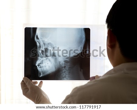 X-ray picture of the skull in doctor's hand.