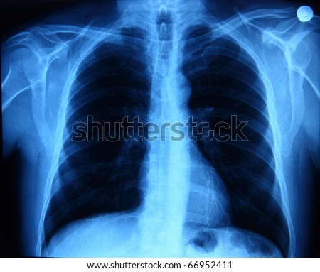 X-ray picture showing chest bones and lungs