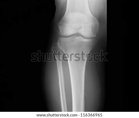 X-ray picture showing knee joints