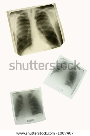 x-ray pictures of chests