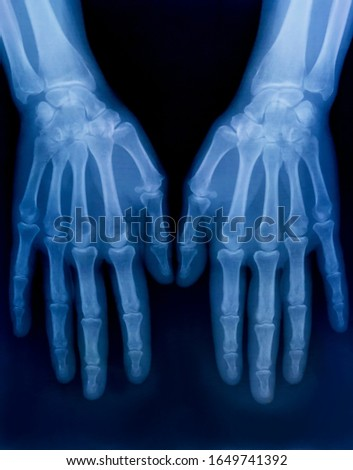 X-ray plate of the bones of the both human hands