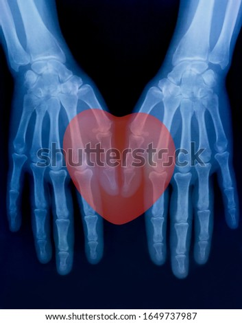 X-ray plate of the bones of the both human hands and red heart sign