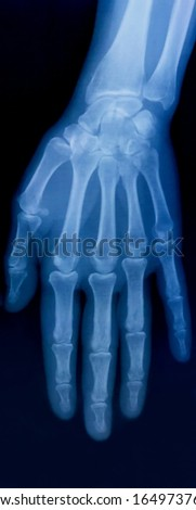X-ray plate of the bones of the human hand
