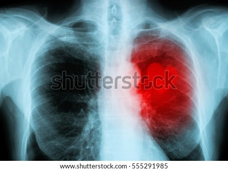 x-ray red heart of human (heart disease)