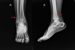 X-ray Right Ankle A female 64 year old accident showing Spiral fracture of distal fibula at level of syndesmosis, with minimal displacement on red arrow mark.Medical image concept.