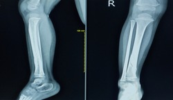 X-ray right leg a boy 3 year old.Showing fracture distal shaft tibia.