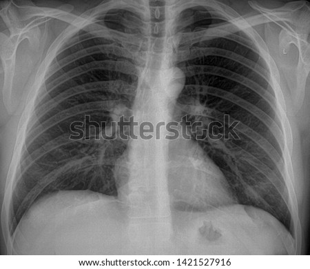 X-ray scan of male smoker lung without editing. Frontal view with probably pathological induration #1421527916
