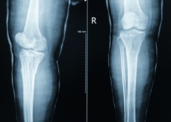 X-ray Tibia include knee (AP,LATERAL)udrer long leg cast finding fracture proximal metaphysis of tibia.Healthcare and insurance concept.