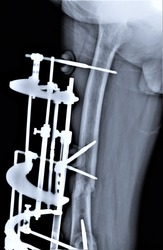 x-ray with a hip fracture fixed by an external fixation device