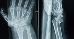 x-ray wrist ap lateral Finding Comminuted fracture at distal meta-epiphyses of right radius,with total dorsal displacement and intra-articular extension of right wrist.Medical image concept.
