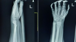 X-ray wrist joint(AP,LATERAL)Complet bony fracture with bony angulation of left distal radius.Green stick fracture of left distal ulna,Medical image concept