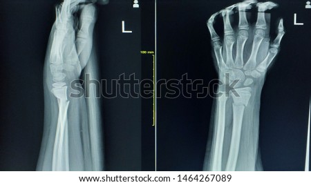 Photo of  X-ray wrist joint(AP,LATERAL)Complet bony fracture with bony angulation of left distal radius.Green stick fracture of left distal ulna,Medical image concept