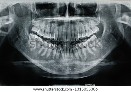 X-ray, X-ray film, mouth, human teeth, #1315055306