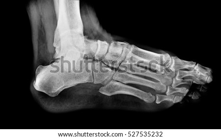 x ray , x-ray image photo of feet side / lateral  view. #527535232