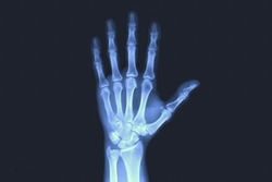 X-rayed human hand. X-ray of hand bones