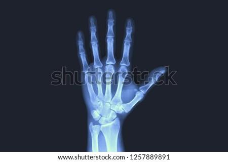 X-rayed human hand. X-ray of hand bones