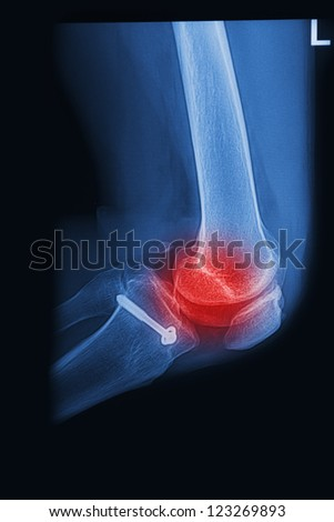 X Rays image  broken knee joint with implant,Image x-rays painful of knee joint