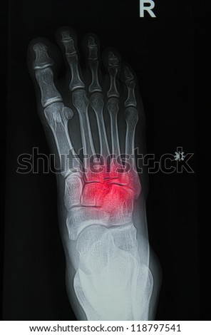 x-rays image of  the painful or injury foot