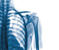 x-rays image of the painful or injury shoulder joint ,shoulder dislocation