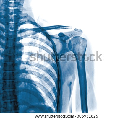 x-rays image of the painful or injury shoulder joint ,shoulder dislocation Foto d'archivio ©