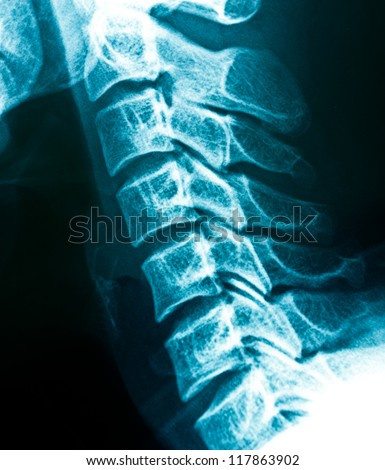 X-rays of the cervical spine