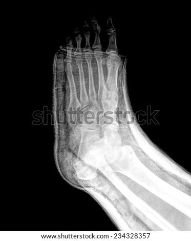 xray broken foot in a cast