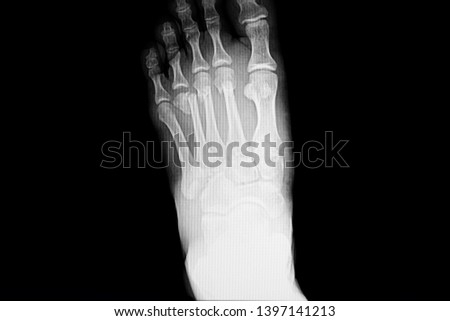 Xray film of a foot of a patient with fracture toes (fracture bones are at second to forth metatarsal necks) #1397141213