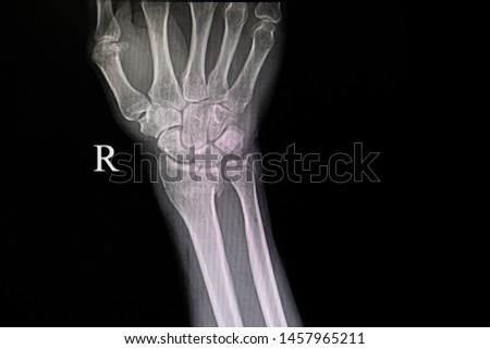 Xray film of a patient with fractured wrist bones. Showing fractures distal radius and ulna bones. #1457965211