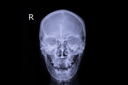 Xray image show human skull