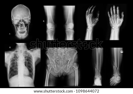 Xray image show skull and knee and hand and chest and hip and leg #1098644072