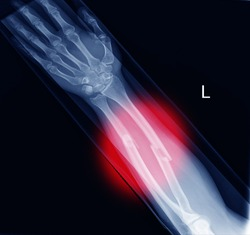 Xray image showing fracture radius and ulna soft tissue swolling on red color mark.Healthcare concept.