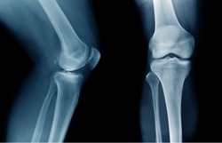xray knee joint good quality