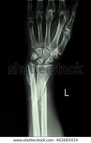 xray left wrist #463685414