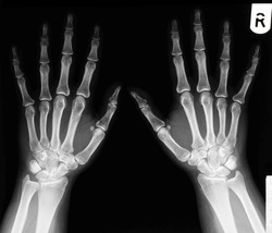 Xray of a healthy 30 year old female, left and right hand