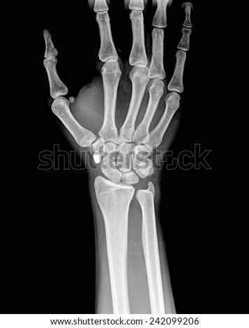 xray of  women wrist #242099206