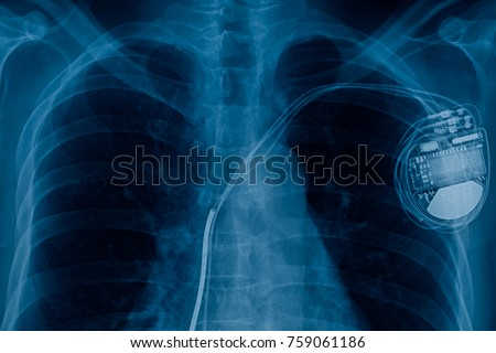 xray pacemaker cell